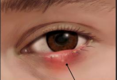 eye lid inflammation